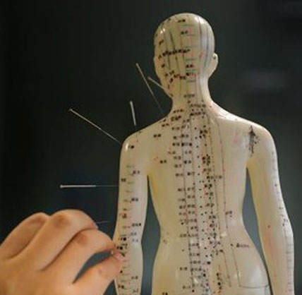 Acupuncture Support